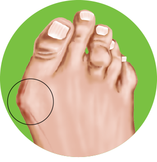 What are bunions?