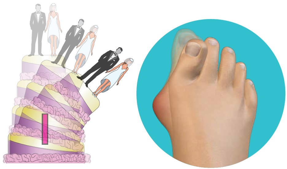 Fourth Dimension Bunion Surgery Composite